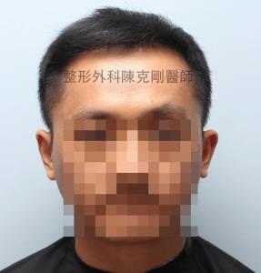 陳克剛醫師桃園巨量植髮案例分享植髮手術後六個月正面