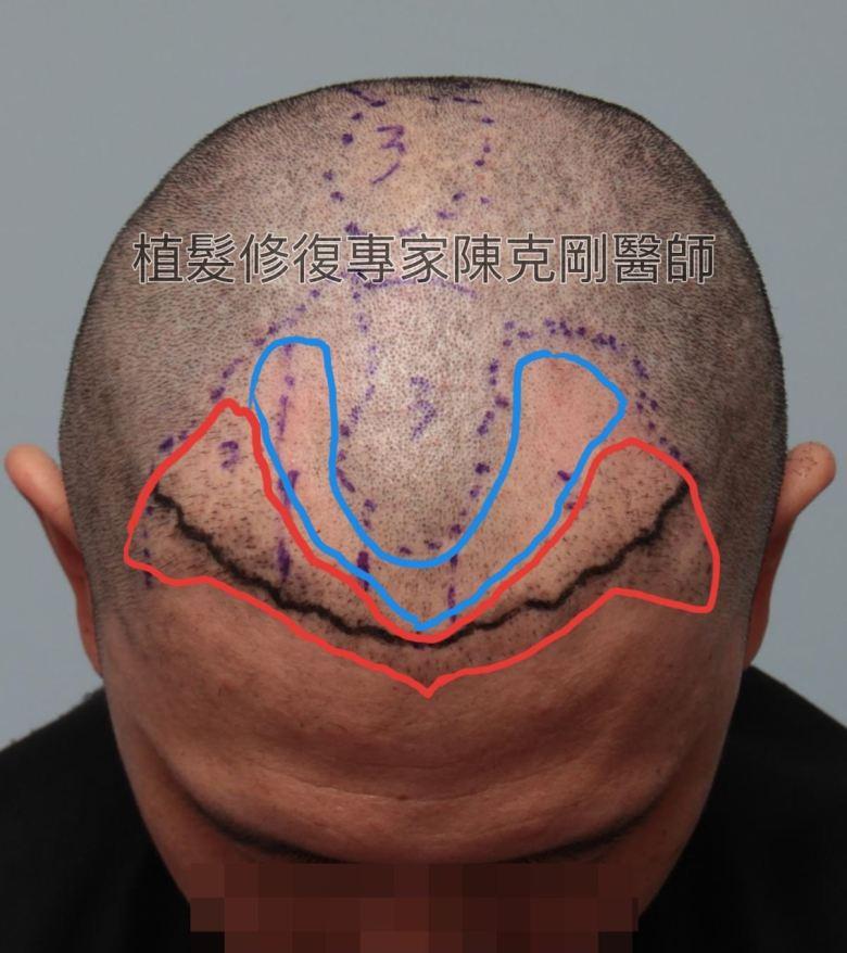 割頭皮植髮失敗 陳克剛醫師FUE巨量植髮重修案例分享 執法失敗原因分析