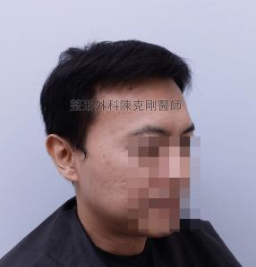 陳克剛醫師台中巨量植髮治療頭頂稀疏案例分享 植髮手術後半年右側