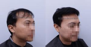 陳克剛醫師台中巨量植髮治療頭頂稀疏案例分享 植髮手術後右側比較