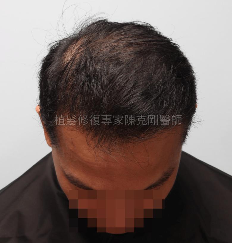 植髮機器人失敗二次植髮重修 寇約翰植髮手術後一年低頭