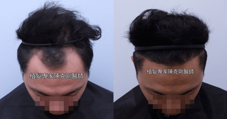 M型禿植髮 恢復年輕髮際線 陳克剛醫師植髮案例分享