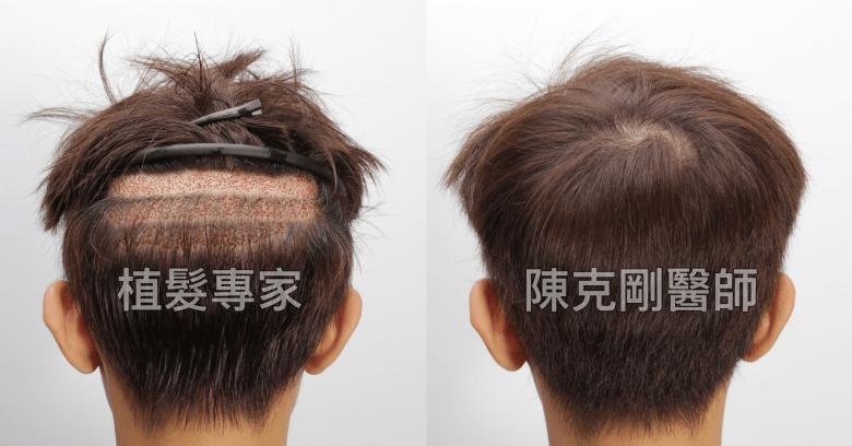 陳克剛醫師 高雄髮際線植髮案例分享 分層剃髮植髮手術後取髮區