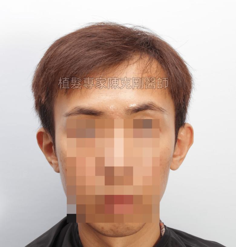 陳克剛醫師 高雄髮際線植髮案例分享 植髮手術前正面