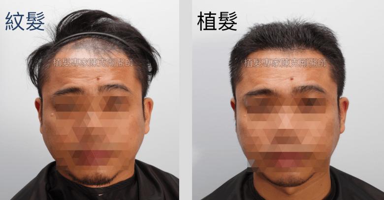 頭皮刺青魔術真髮後植髮案例分享 植髮手術後七個月髮比較