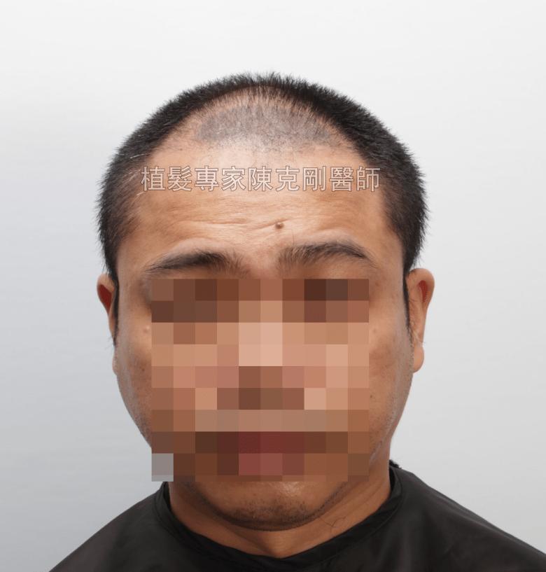 頭皮刺青魔術真髮後植髮案例分享 植髮手術後三個月正面髮線