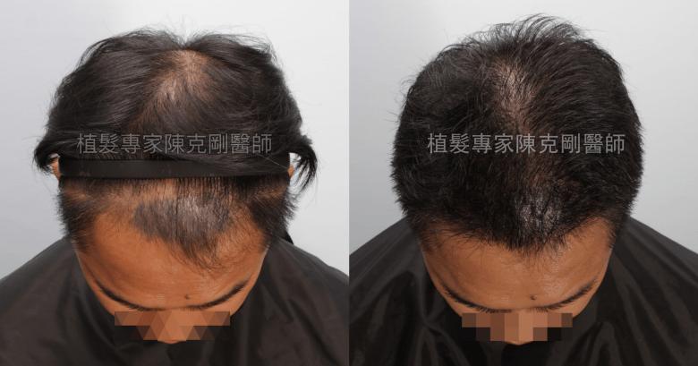 頭皮刺青魔術真髮後植髮 植髮手術後七個月低頭比較
