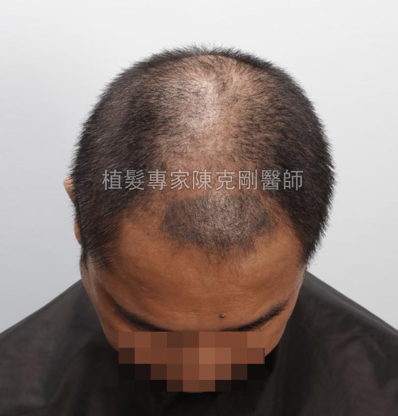 頭皮刺青魔術真髮後植髮 植髮手術後三個月低頭