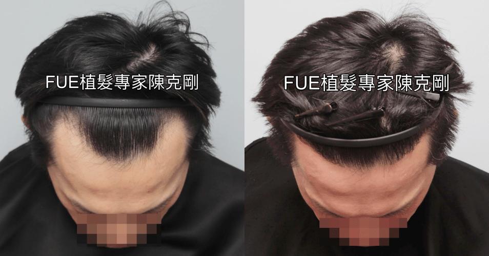 FUE植髮治療髮線後退