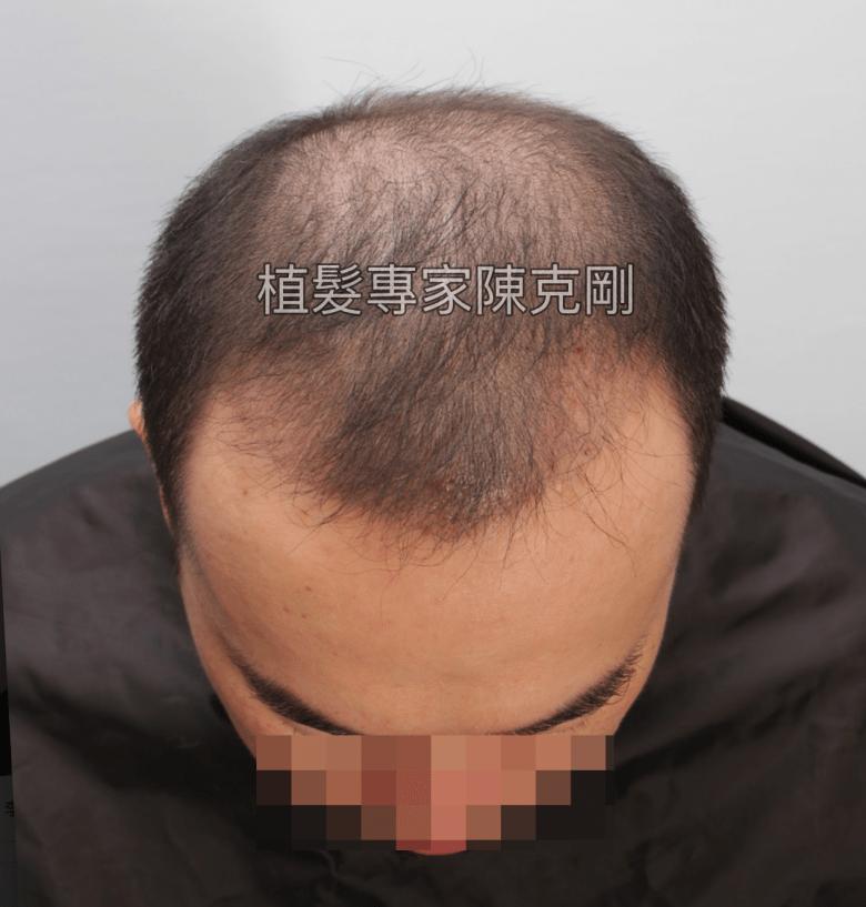 陳克剛巨量植髮案例