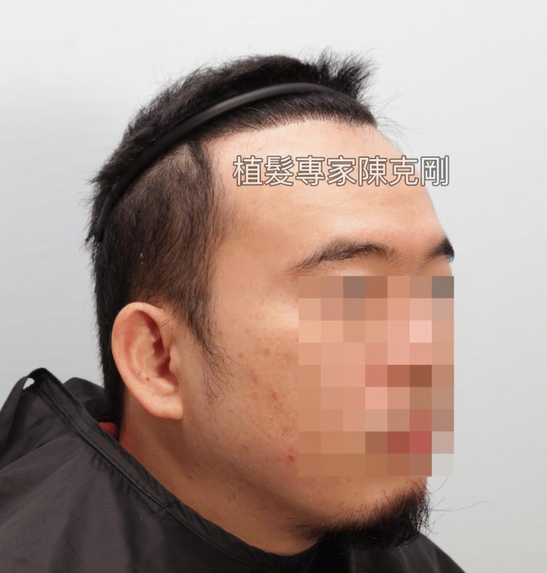 巨量植髮改善M型禿地中海禿