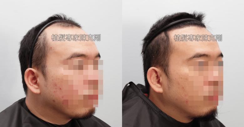 微創植髮手術改善第四期雄性禿