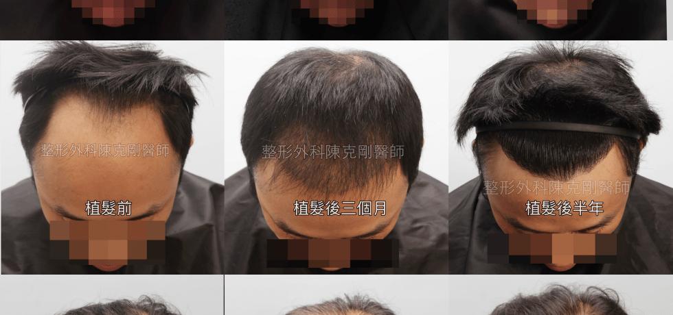 植髮後生長期