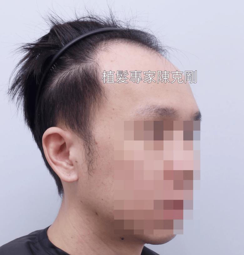 陳克剛植髮經驗分享