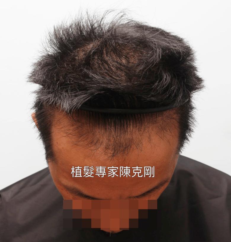 台中植髮經驗分享