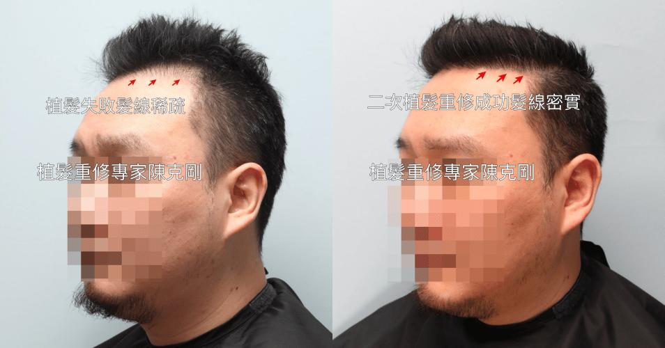 台北植髮診所推薦