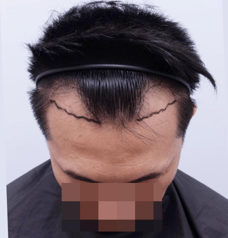 高雄米蘭植髮評價