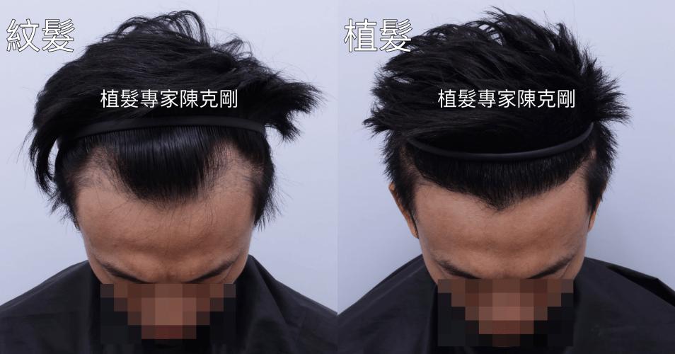 台中植髮推薦