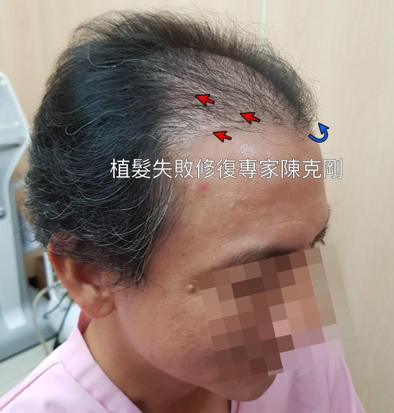 錯誤髮流以及極低的密度顯示了手術的醫師經驗不足造成了植髮的失敗