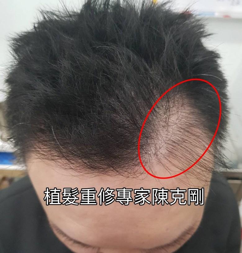 植髮失敗案例