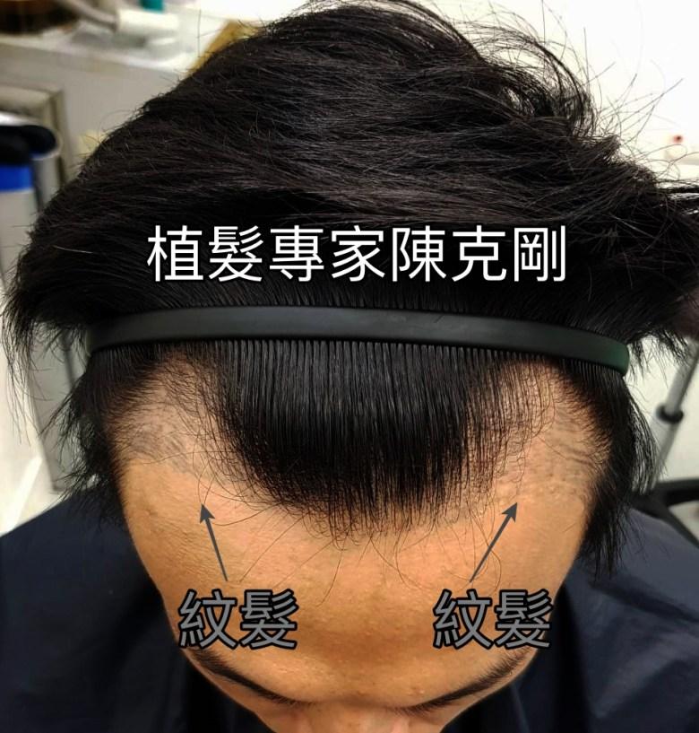 髮際線紋髮失敗