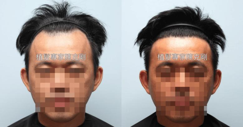 米蘭植髮案例分享