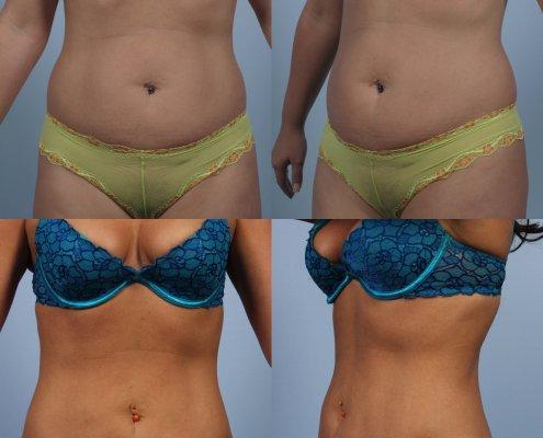 liposuction abdomen laser