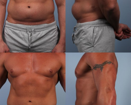 liposuction male bodybuilder