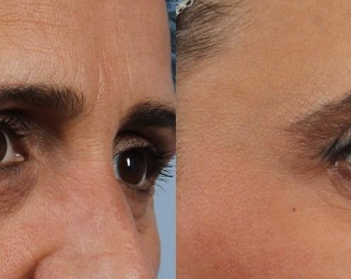 smile wrinkles botox nyc