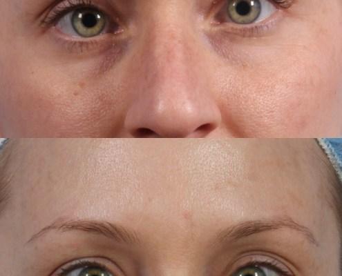 nyc botox eyes