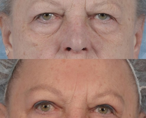 nyc eyebrow lift