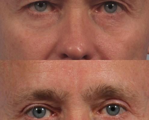 upper eyelid male