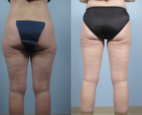 liposuction outer thighs ny
