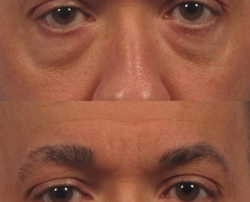 under eye juvederm