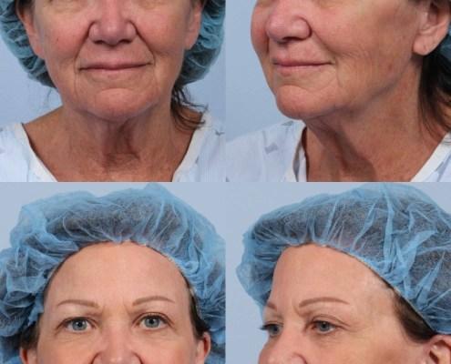 ny facelift dr