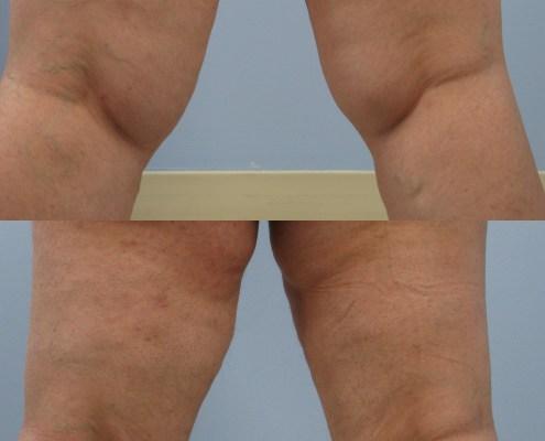 inner knee lipo westchester