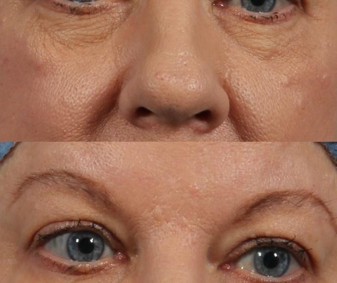 eye lift bags