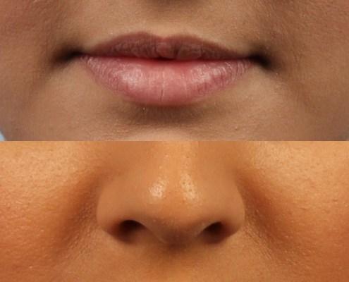 ny lip fillers