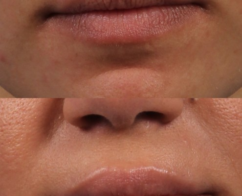 filler lips nyc plastic