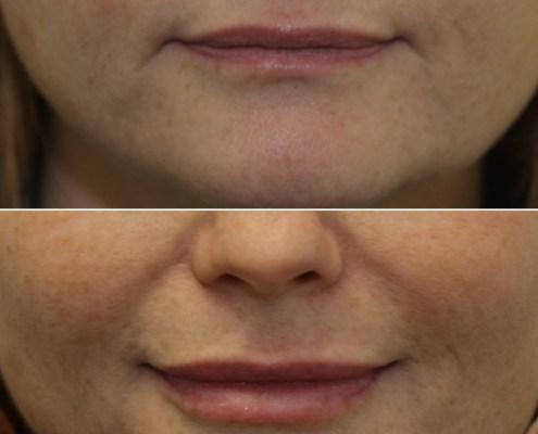 restylane lips nyc