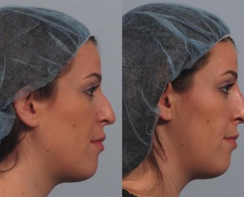 nasal fill profile