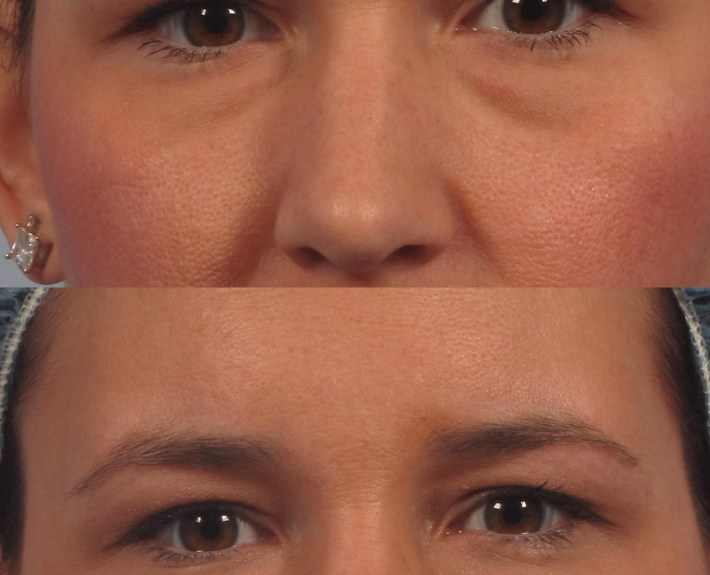 eyelid non-surgical