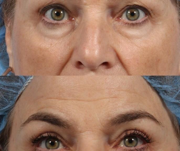 eyelid lift surgery ny