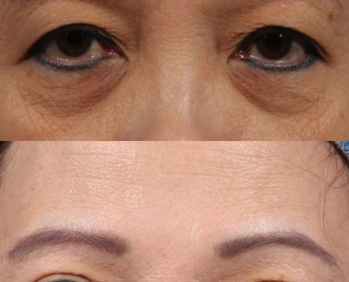double eyelid kotlus