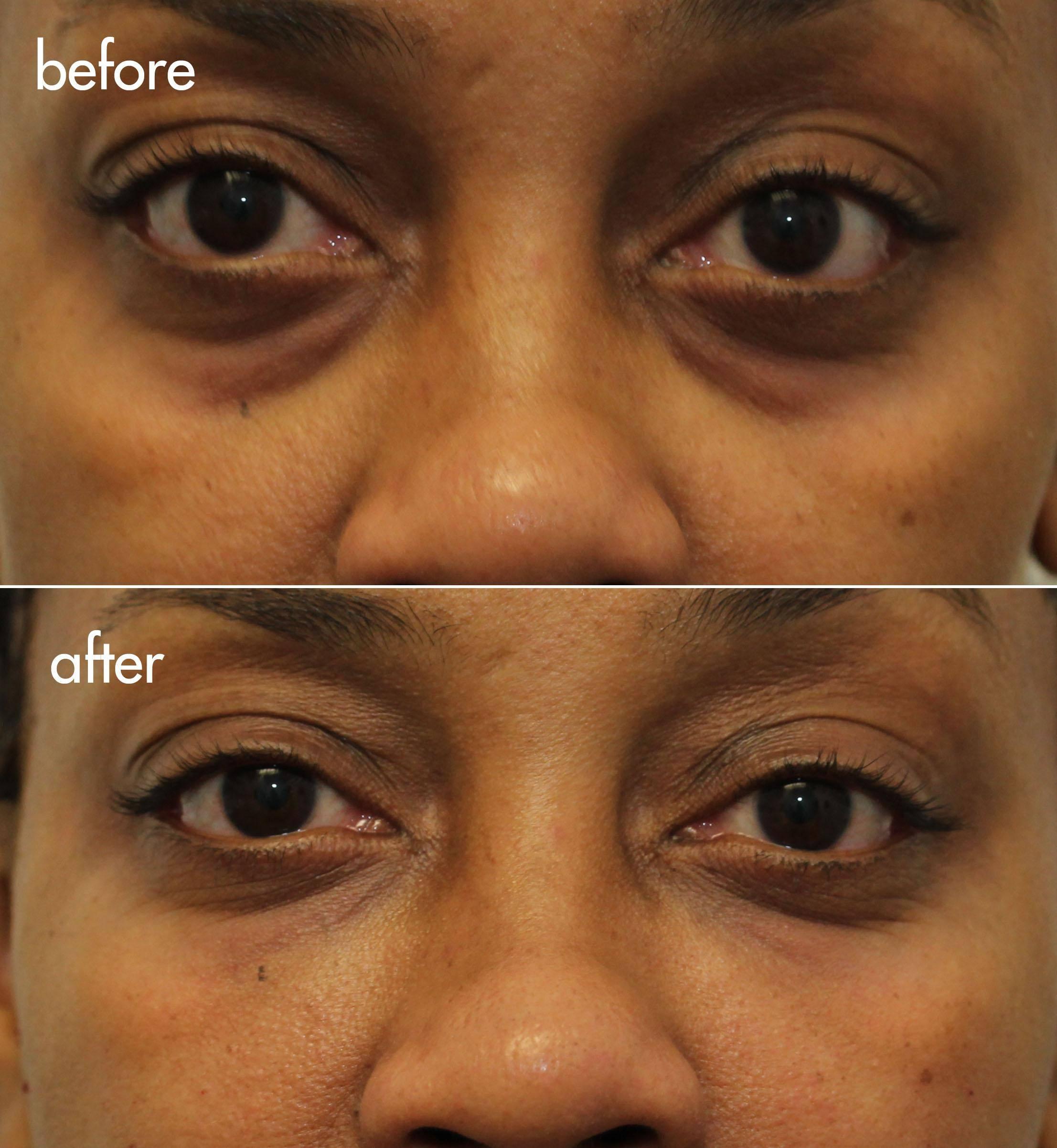 Cannula Tear Trough Filler Under Eye Bags And Dark Circles