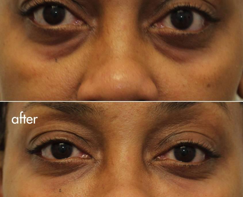 cannula eye lift