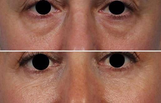 fat graft under eyes ny