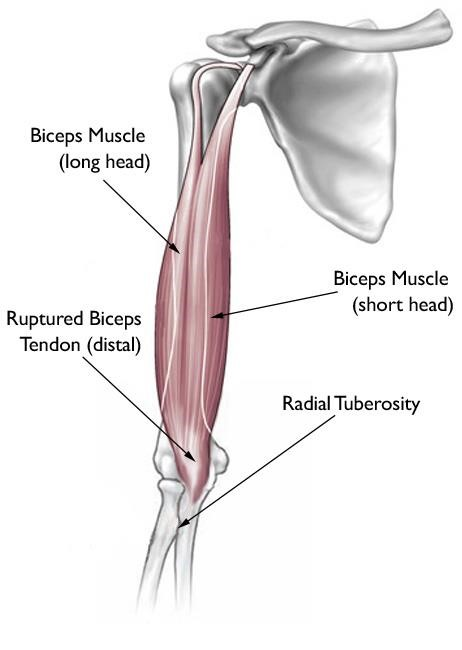 A complete tear of the distal biceps tendon