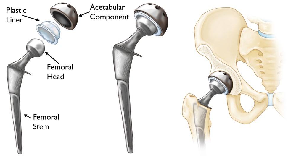 Components used in primary total hip replacement