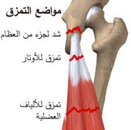 التمزق فى الألياف العضلية